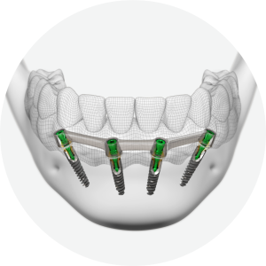 Screw-retained restorations