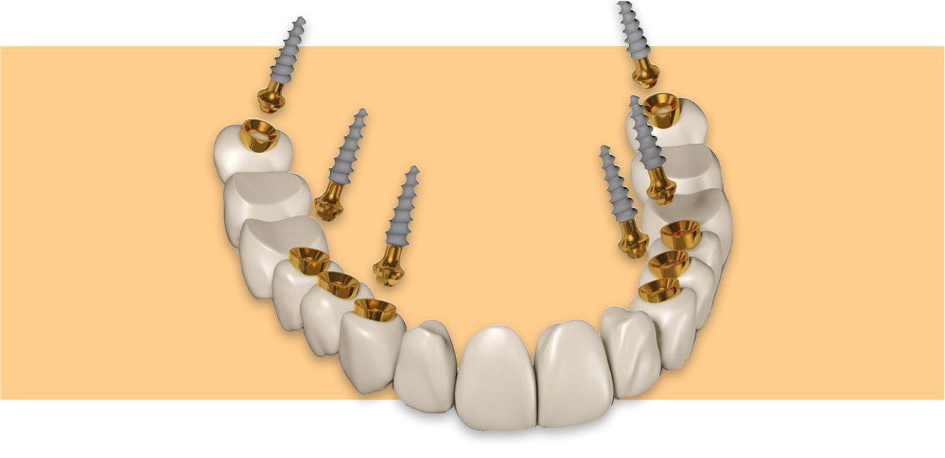 Compressive implants