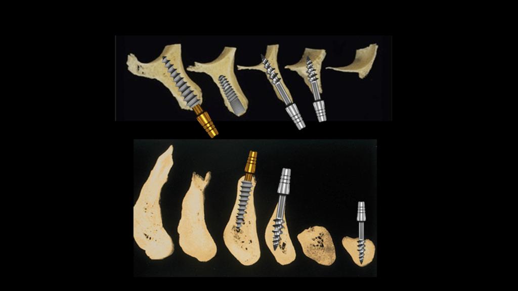 Bone configuration