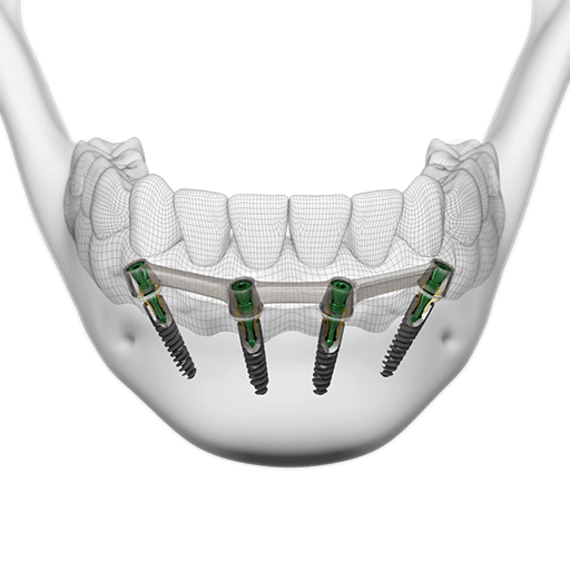 screw-retained